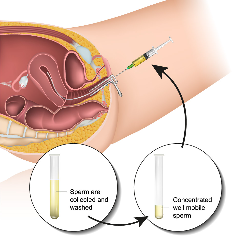 iOvulation Induction Intrauterine Insemination